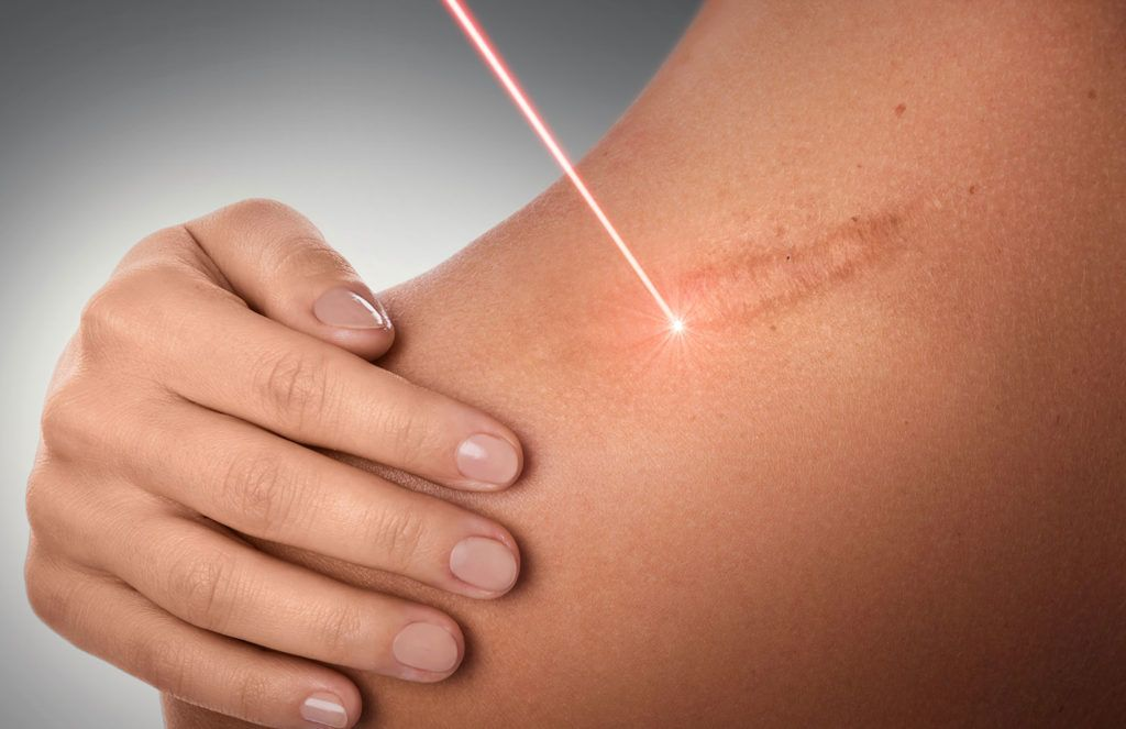 Le laser UrgoTouch pour la cicatrisation, par le Dr Petit à Paris
