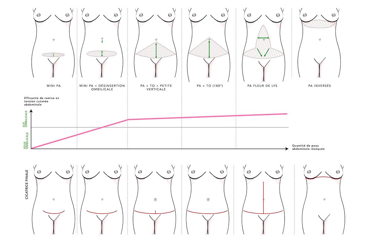 Schéma résumant les principaux types de plasties abdominales