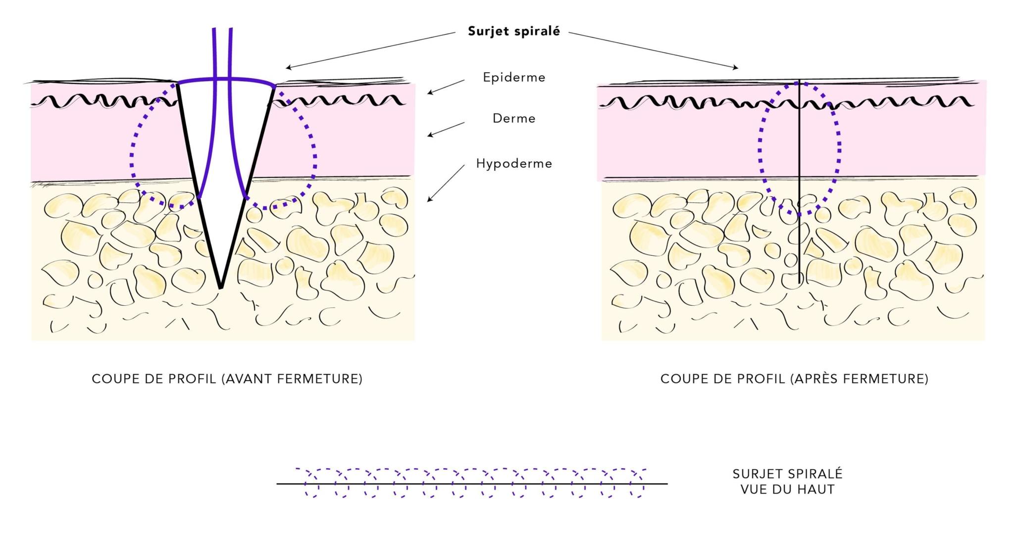 Le surjet spiralé : un nouveau concept de suture cutanée en chirurgie esthétique de la silhouette pour optimiser la cicatrisation